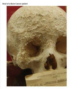 skull07-4